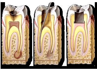 endodonciaGraf